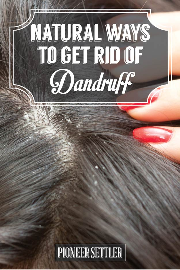 Natural Therapy To Get Rid Of Dandruff